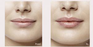 Modelowanie i powiększanie ust wrocław