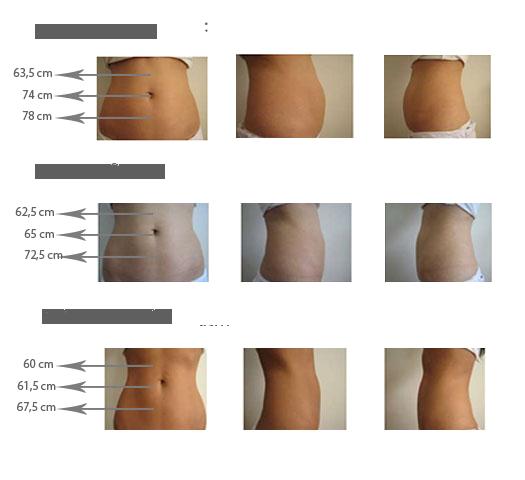 Przed i po zabiegu kriolipolizy